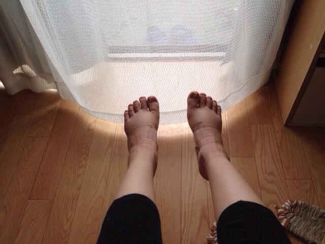 【妊娠中のマイナートラブル】足のむくみや痺れ対策に就寝時用の着圧ソックスを履いてみたこと